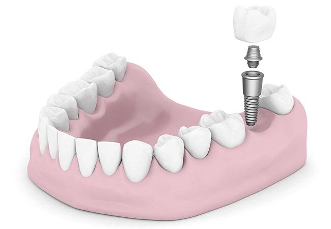Консультация стоматолога по имплантации зубов